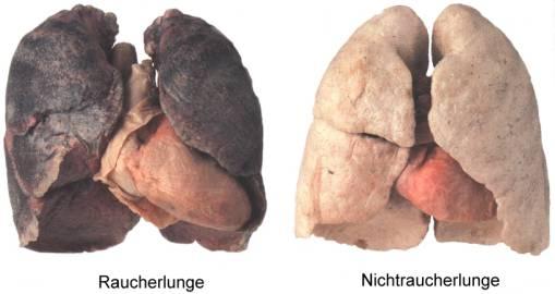 nichtraucher werden buch, nichtraucher werden tipps, nikotinsucht besiegen, nikotinsucht bekaempfen nikotinsucht beenden